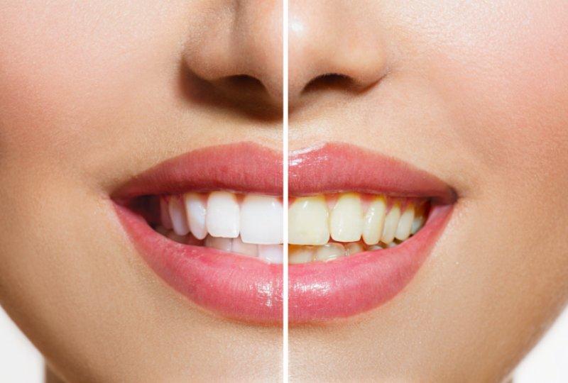 שיטות להלבנת שיניים