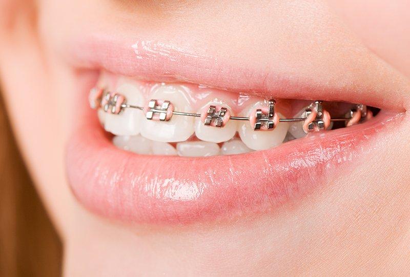 מידע אודות יישור שיניים