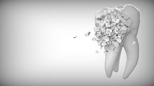 כאבים לאחר עקירת שן
